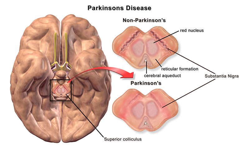 parkinsons disease treatment