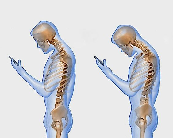 Here's What Texting Really Does to Your Spine